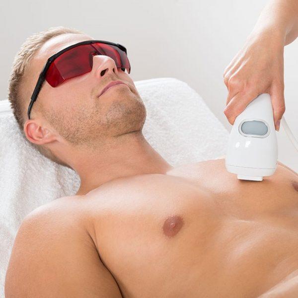 depilacja laserowa męska men swil