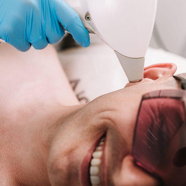 depilacja laserowa uszy